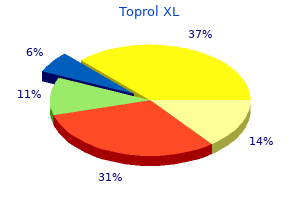 cheap toprol xl 25 mg mastercard